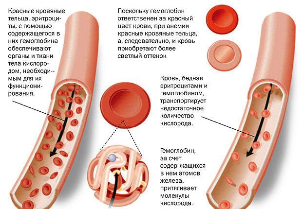 nizkij-gemoglobin-u-zhenshhin-6